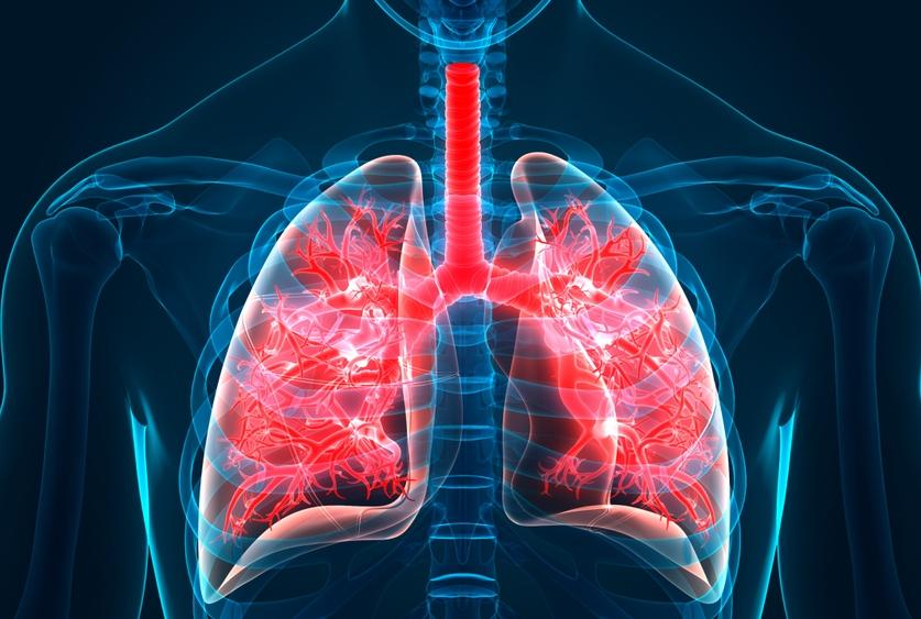 Global Idiopathic Pulmonary Fibrosis Market