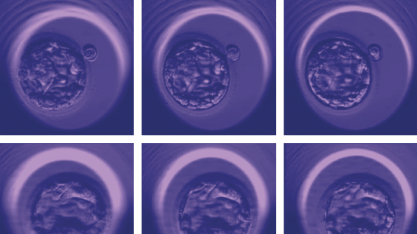 microscopic images show three examples of early-stage human embryos of varying quality