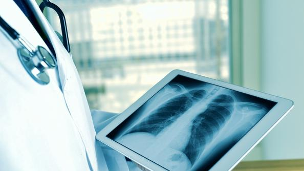 doctor holding tablet with chest x-ray